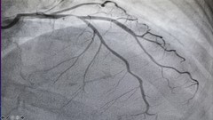 Coronary Angiography Certificate Course
