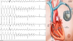 Diploma in Pacing devices (pacemaker & ICD) part 1